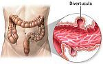 Diverticula Causes and Treatments.