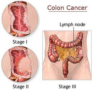 Colon Rectal Cancer Stages.