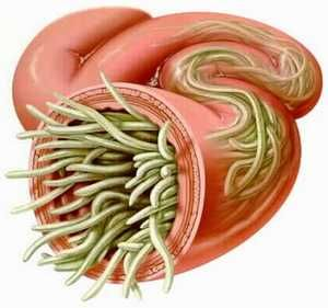 Colon Cleansing - Parasite Cleanse.