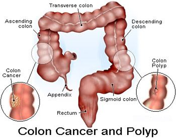 Causes, Symptoms and Treatment of Colon Polyps.